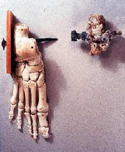 Nails in the foot of a crucified person